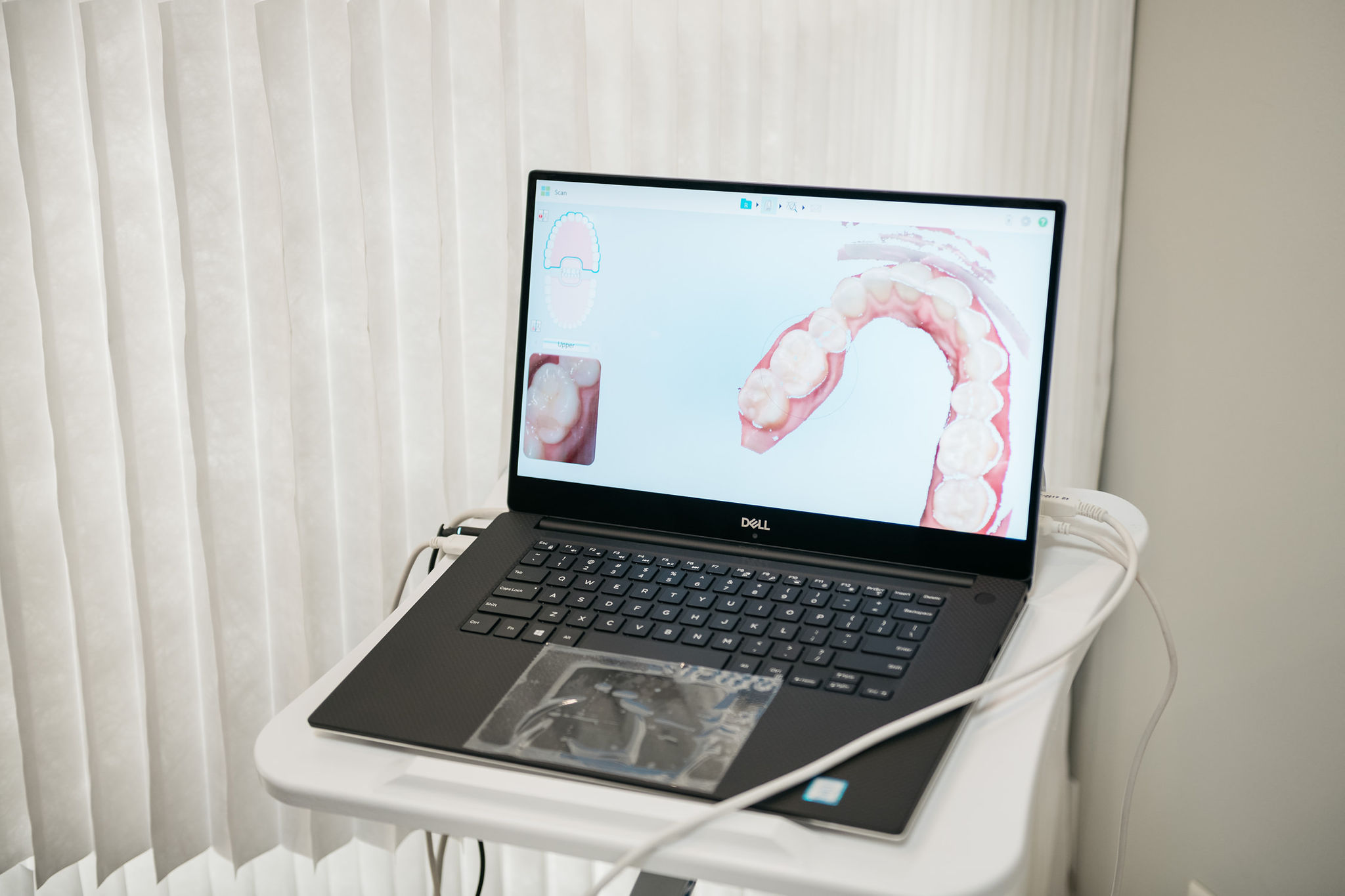 clear aligners with candid